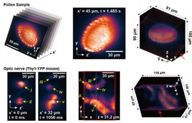 GIST 연구팀이 개발한 새로운 3차원 생체 현미경은 기존보다 빠르게 생체 이미지를 재현할 수 있다. - GIST 제공